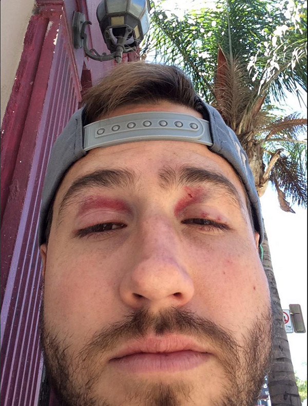 bachelorette jj lane beat up