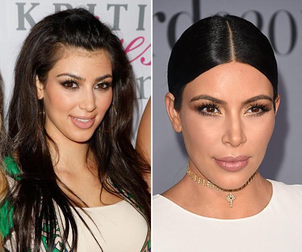 celebrity hair removal laser