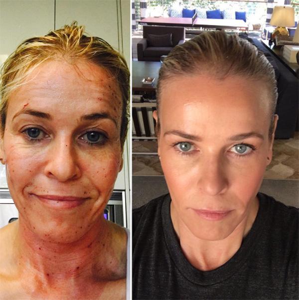 Chelsea Handler Anti Aging Treatment