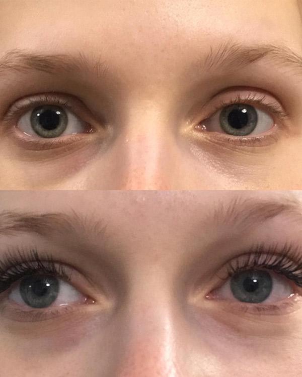 Do Eyelash Extensions Damage Lashes