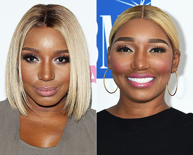 NeNe Leakes Before/After