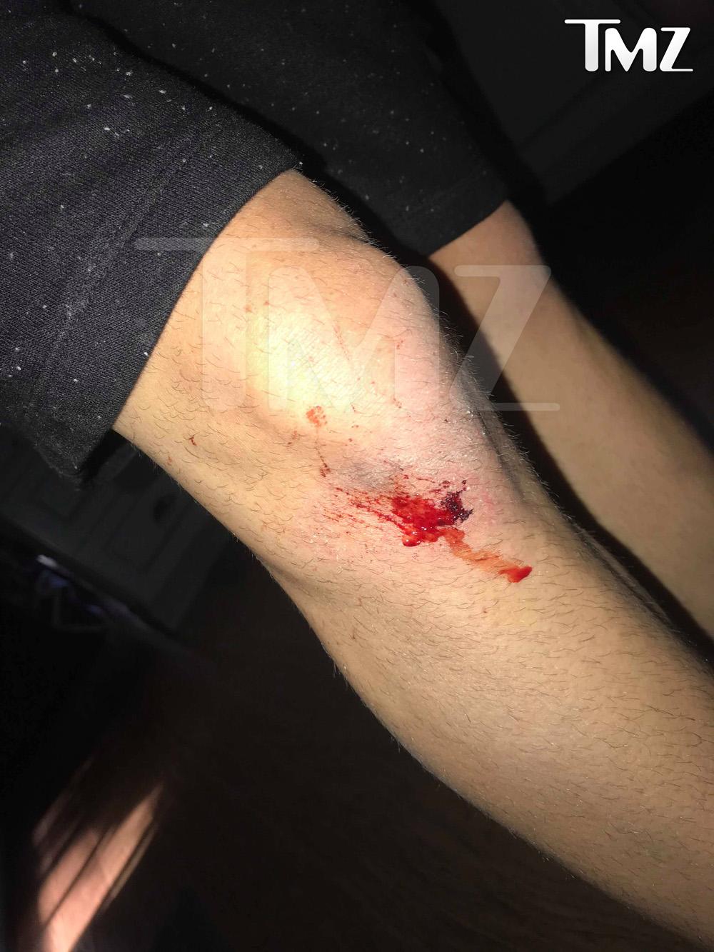 Ashton Kutcher Car Accident