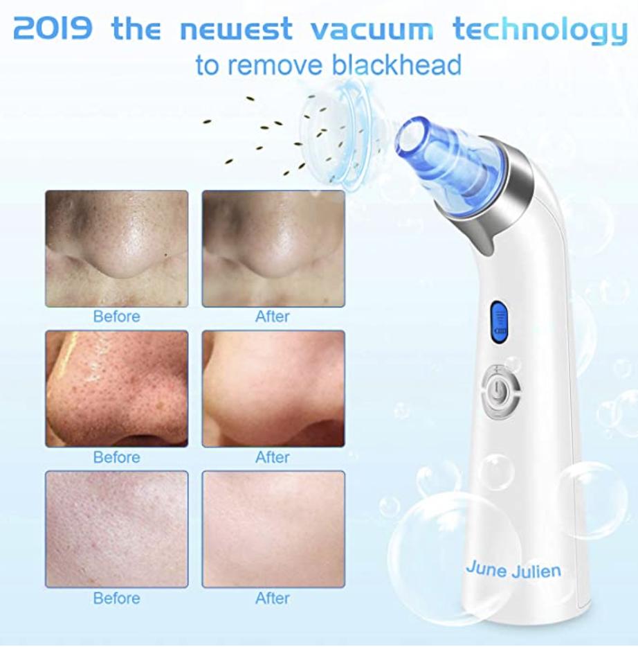blackhead remover vacuum
